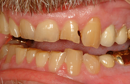 Where can I find a Chatsworth Root Canal?
