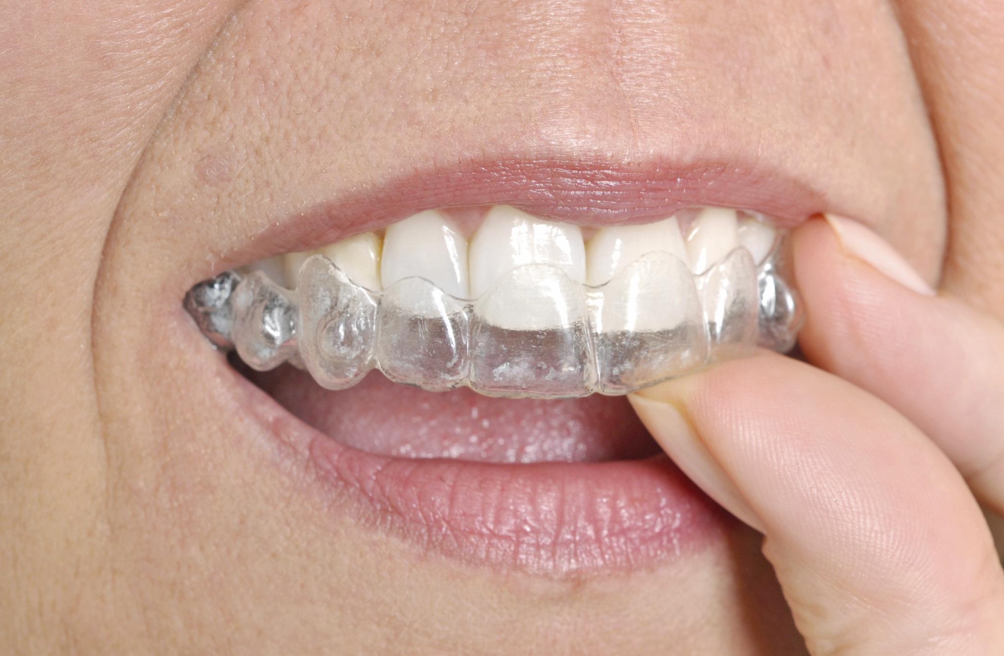 Franklin Square orthodontist