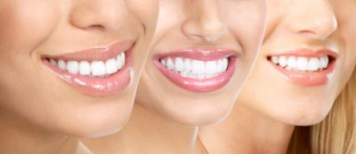 Englewood Teeth Whitening