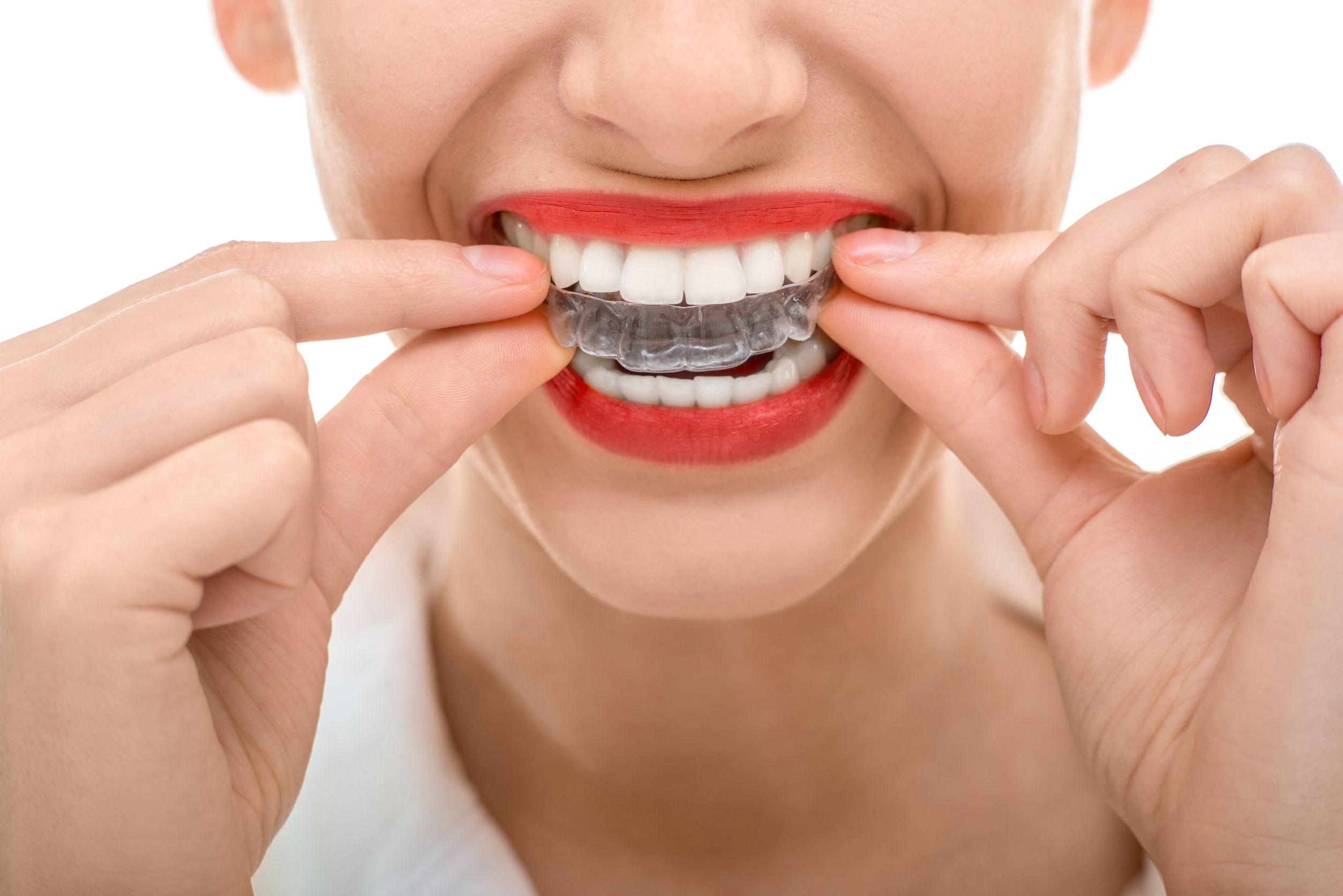Orthodontics in Elizabeth