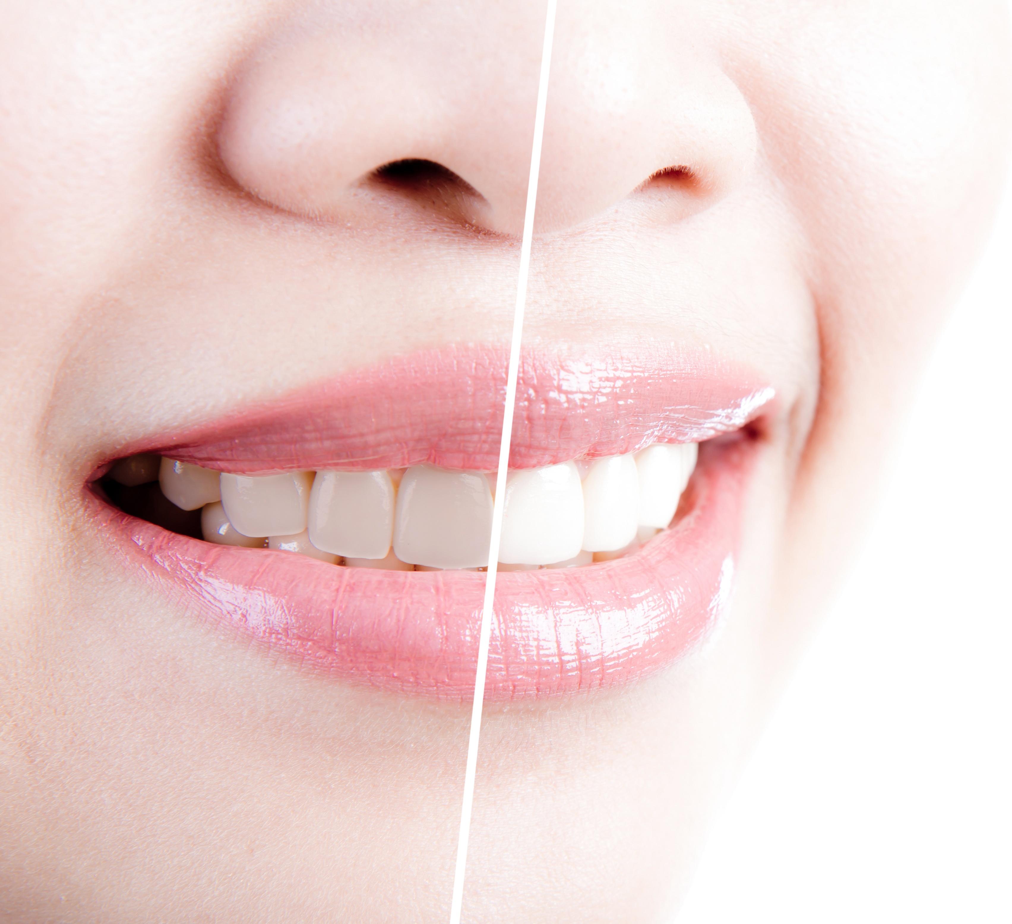 Teeth Whitening in Roselle