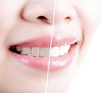 Carlisle Teeth Whitening