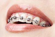 Dental Braces in Los Angeles
