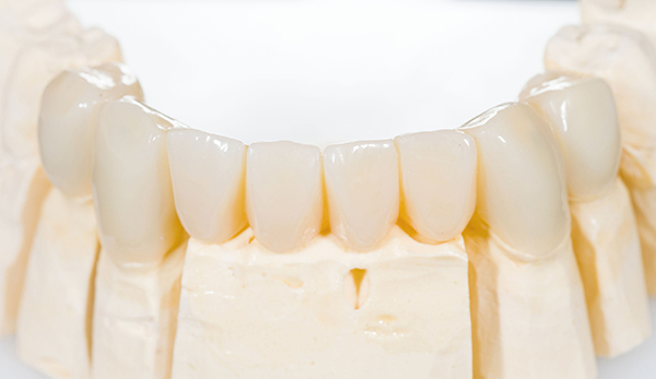 Camarillo dentures