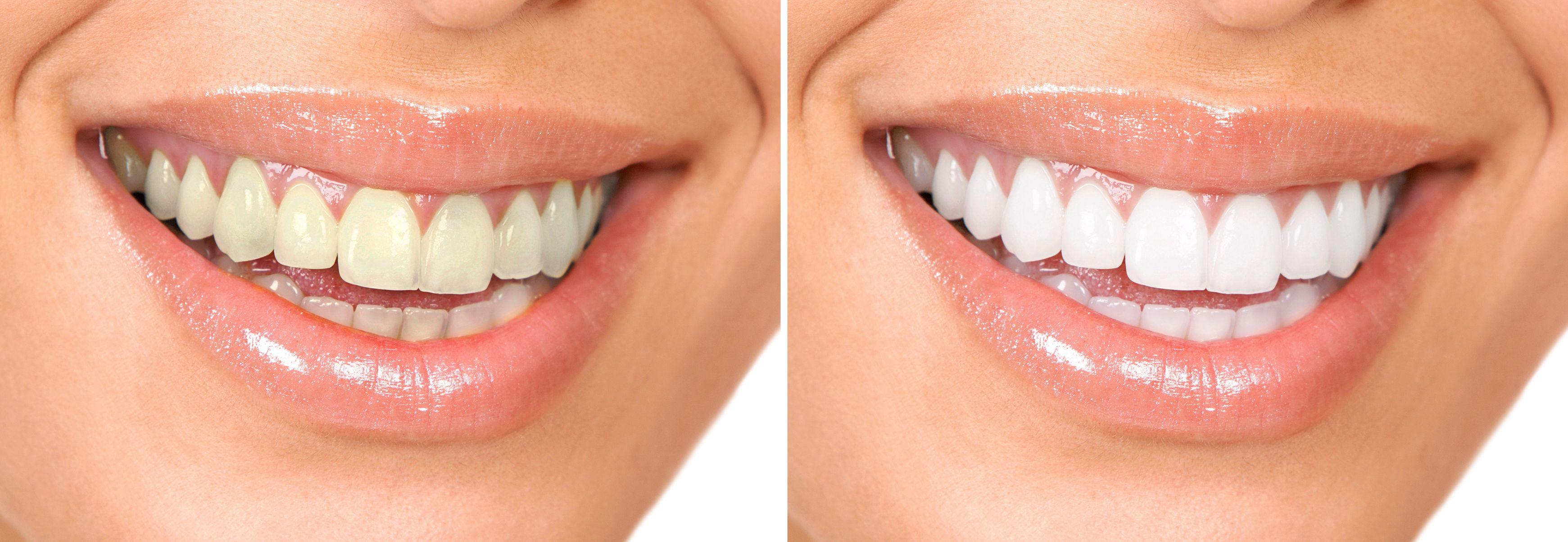 Burlington Cosmetic Dentist