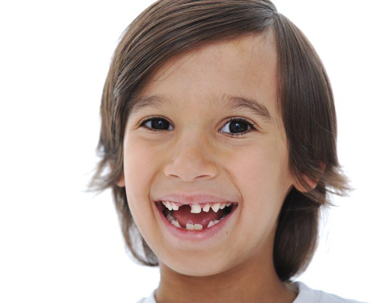 Where can I find a Burlington Kids Dentist?
