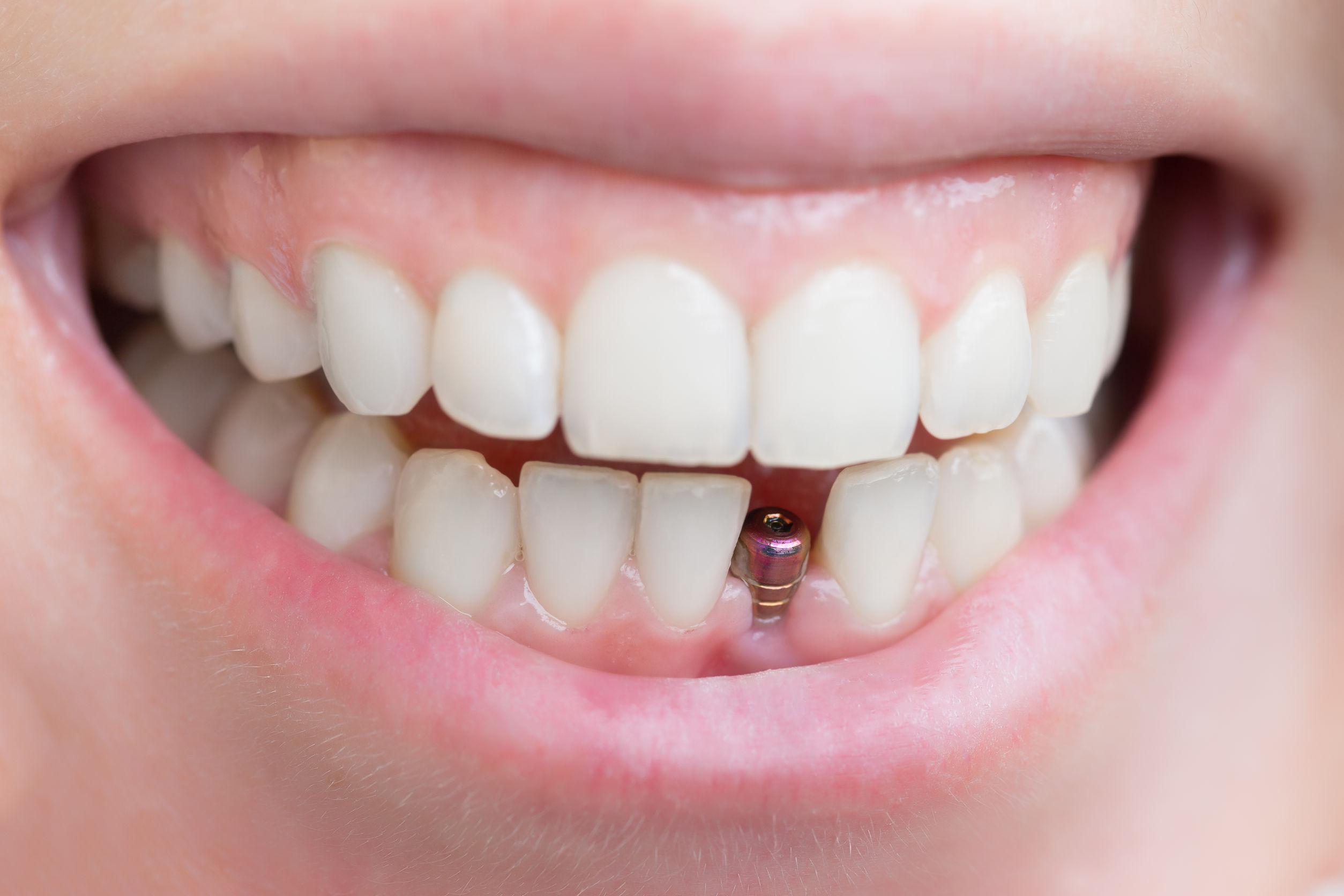 41017 Dental Implants