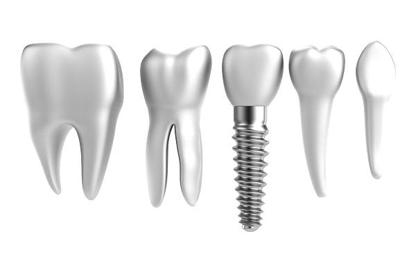 Dental Implants 08901
