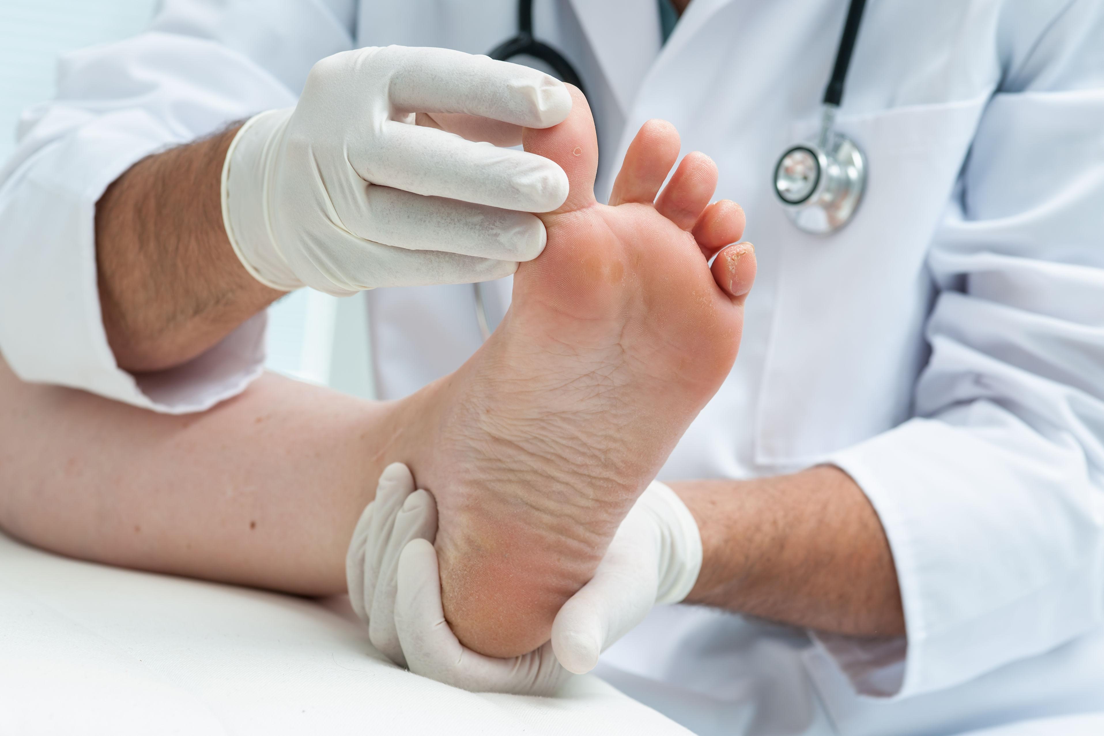 Springdale AR Foot Care
