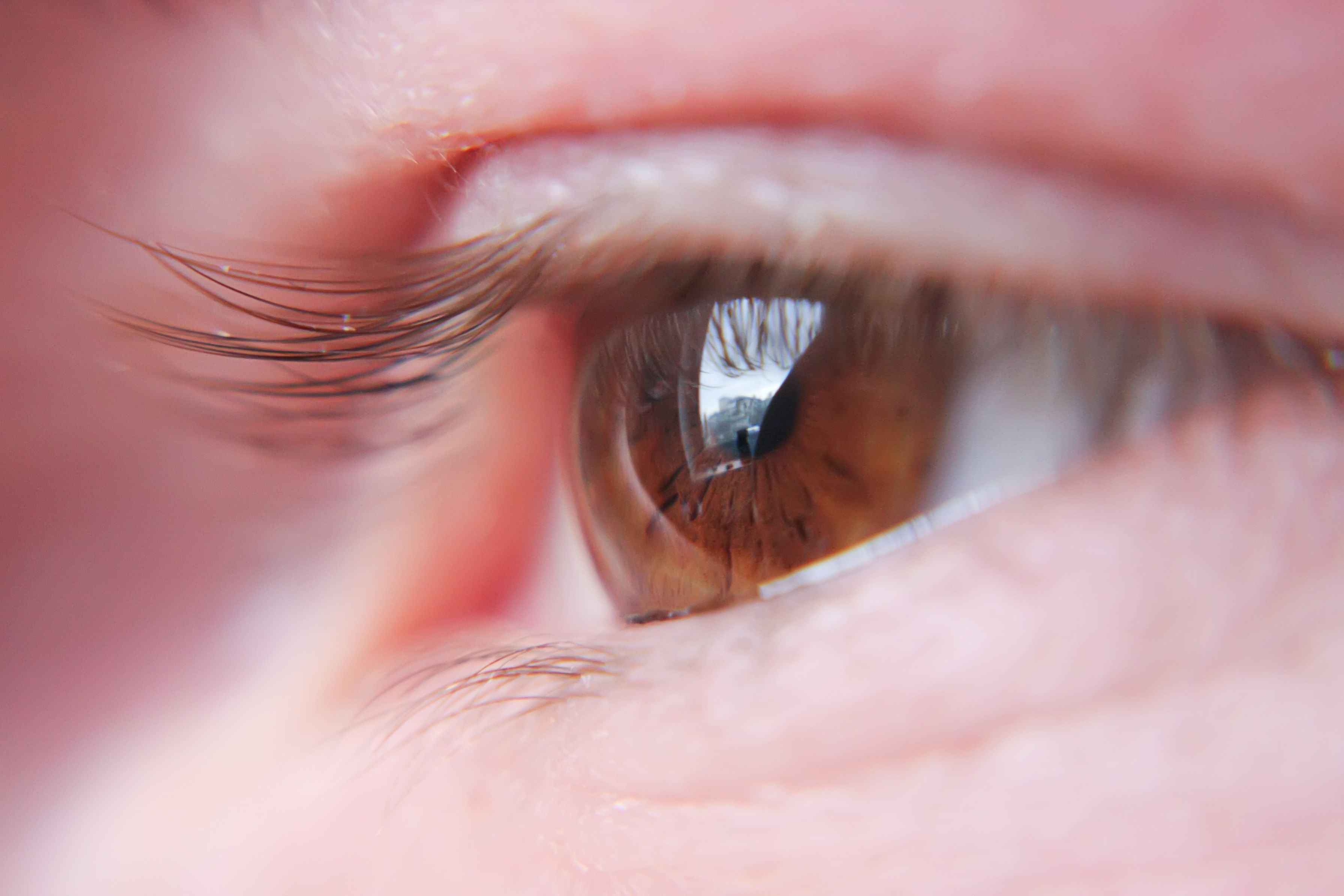 Seattle eye care