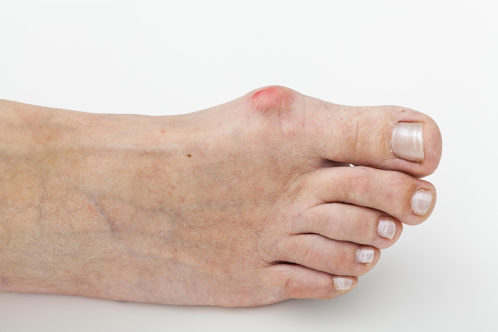Flat feet treatment 11235