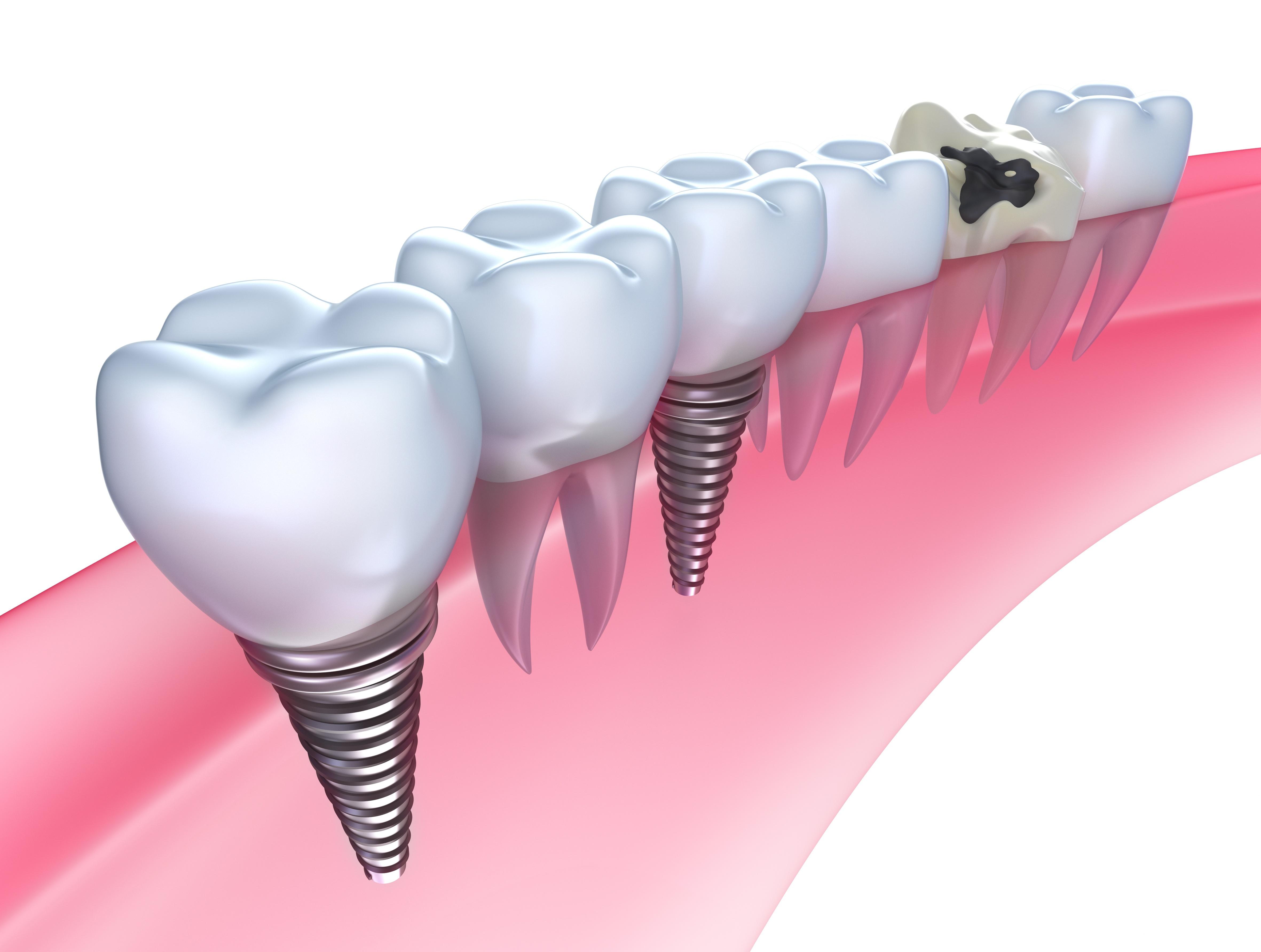 Dental Implants in Saint Augustine