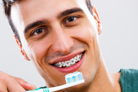 Teeth Cleaning in San Diego