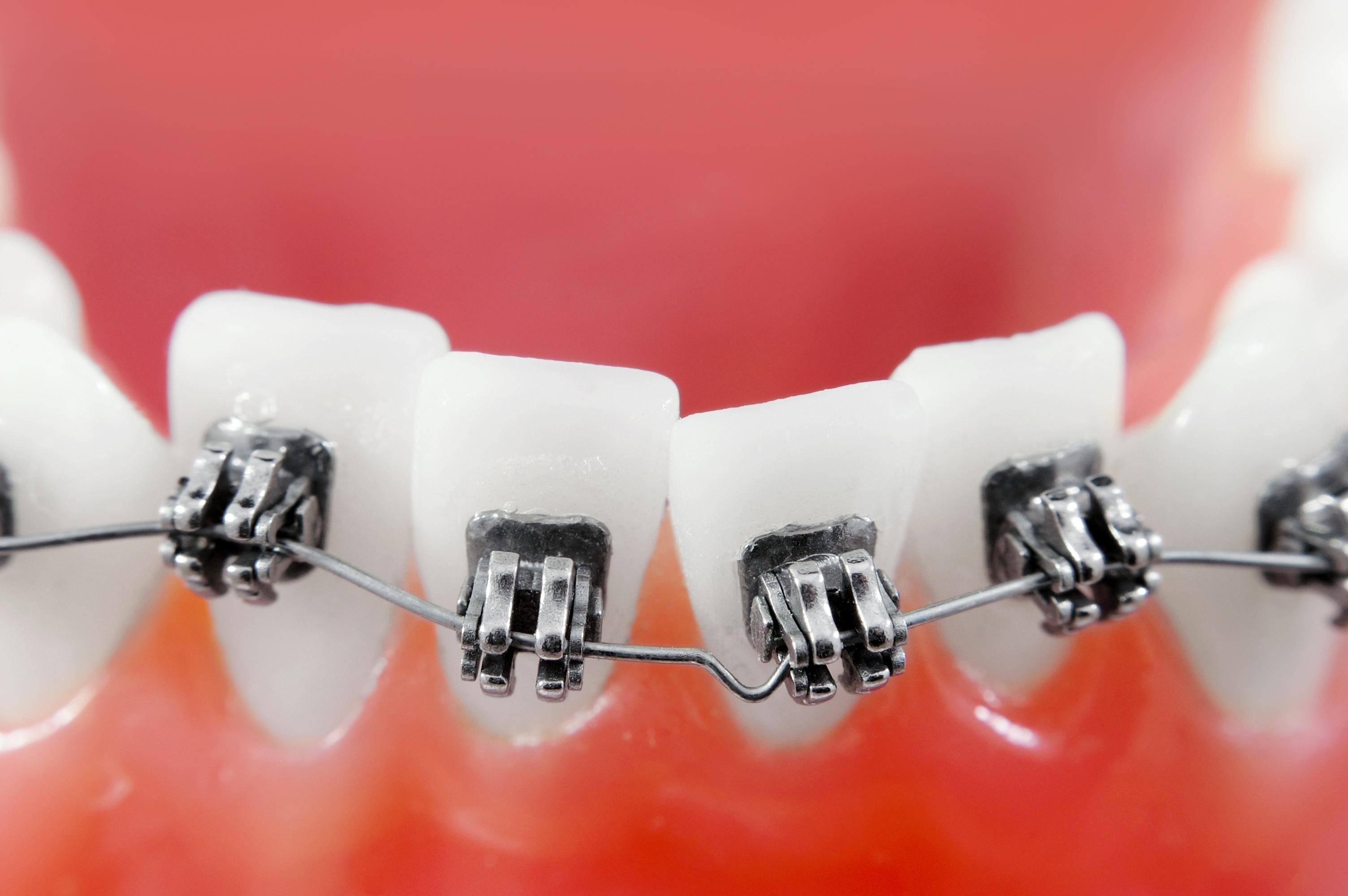 Little Neck Orthodontic Office
