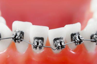 Dental Braces in Little Neck