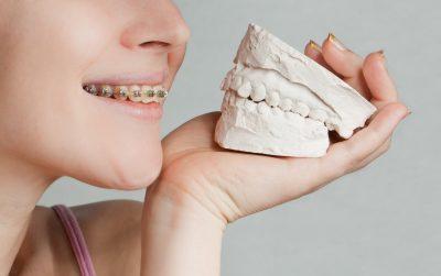 Orthodontics in Alexandria