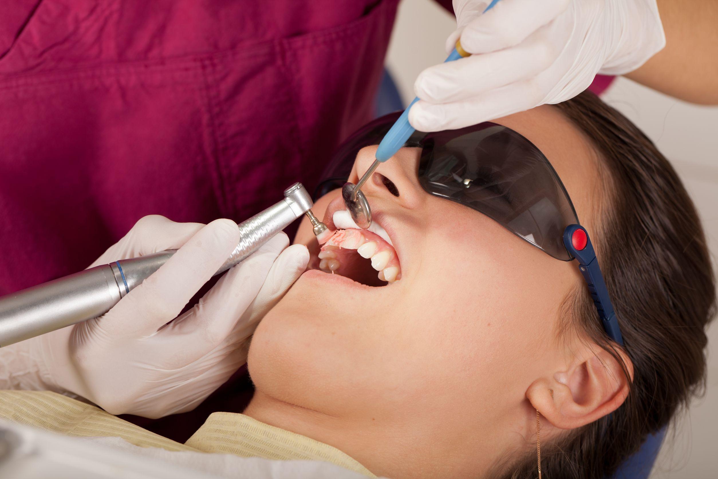 Lake Success Dental Fillings