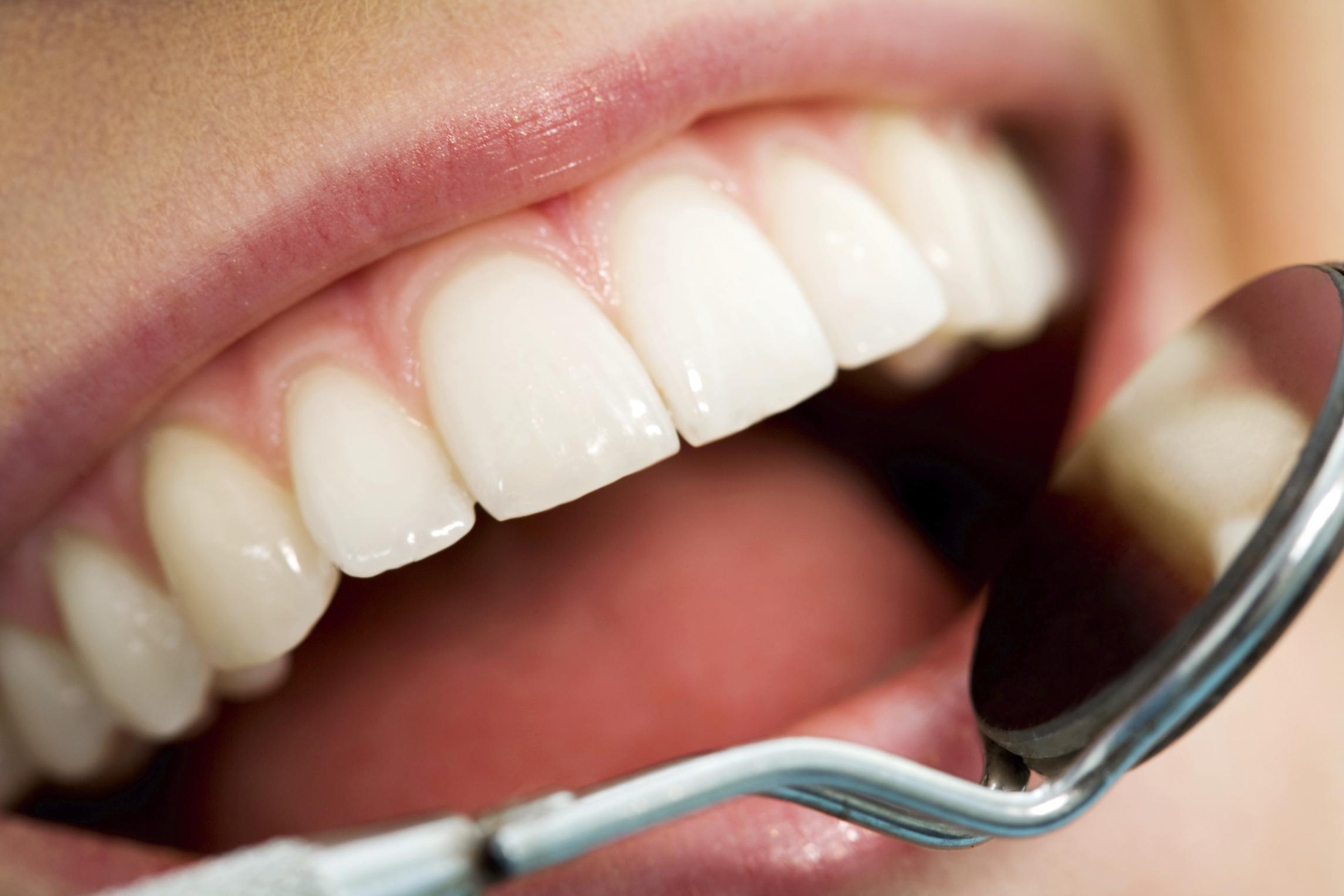 Coney Island Teeth Whitening