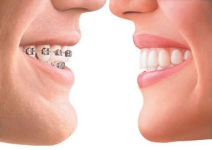 Cosmetic Dentistry and Invisalign | West Hartford Dentists