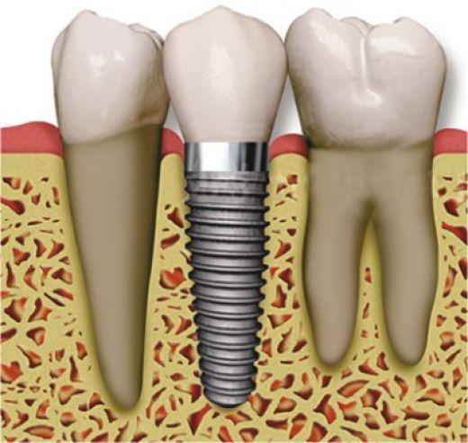 Cosmetic Dentistry Hartford
