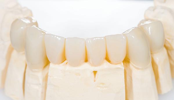Bellevue gum disease