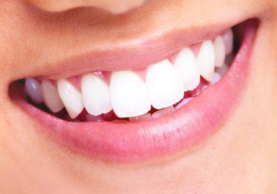 Laser Teeth Whitening 20850