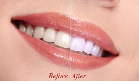 Teeth Whitening in Flemington