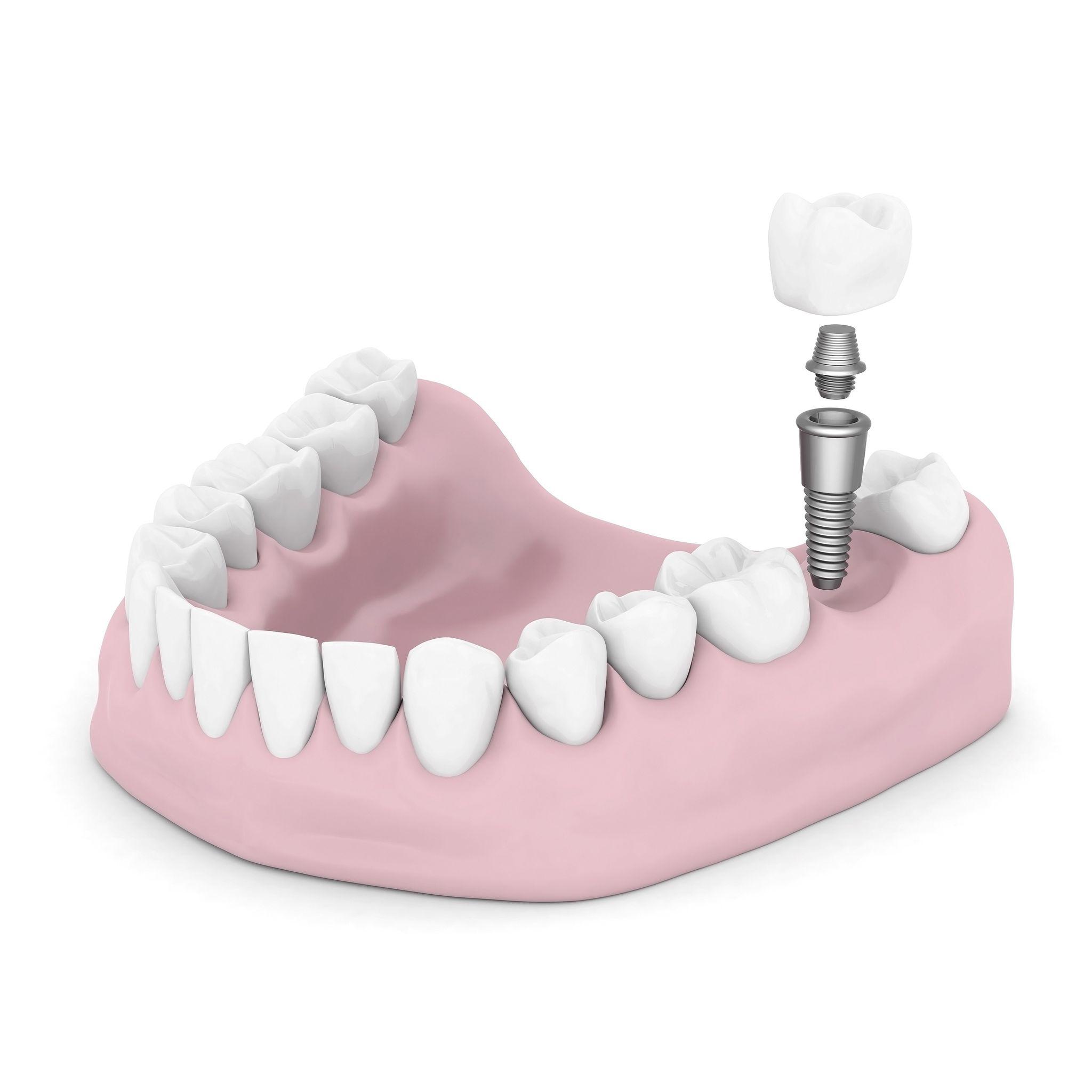 Alpharetta Dental Implants