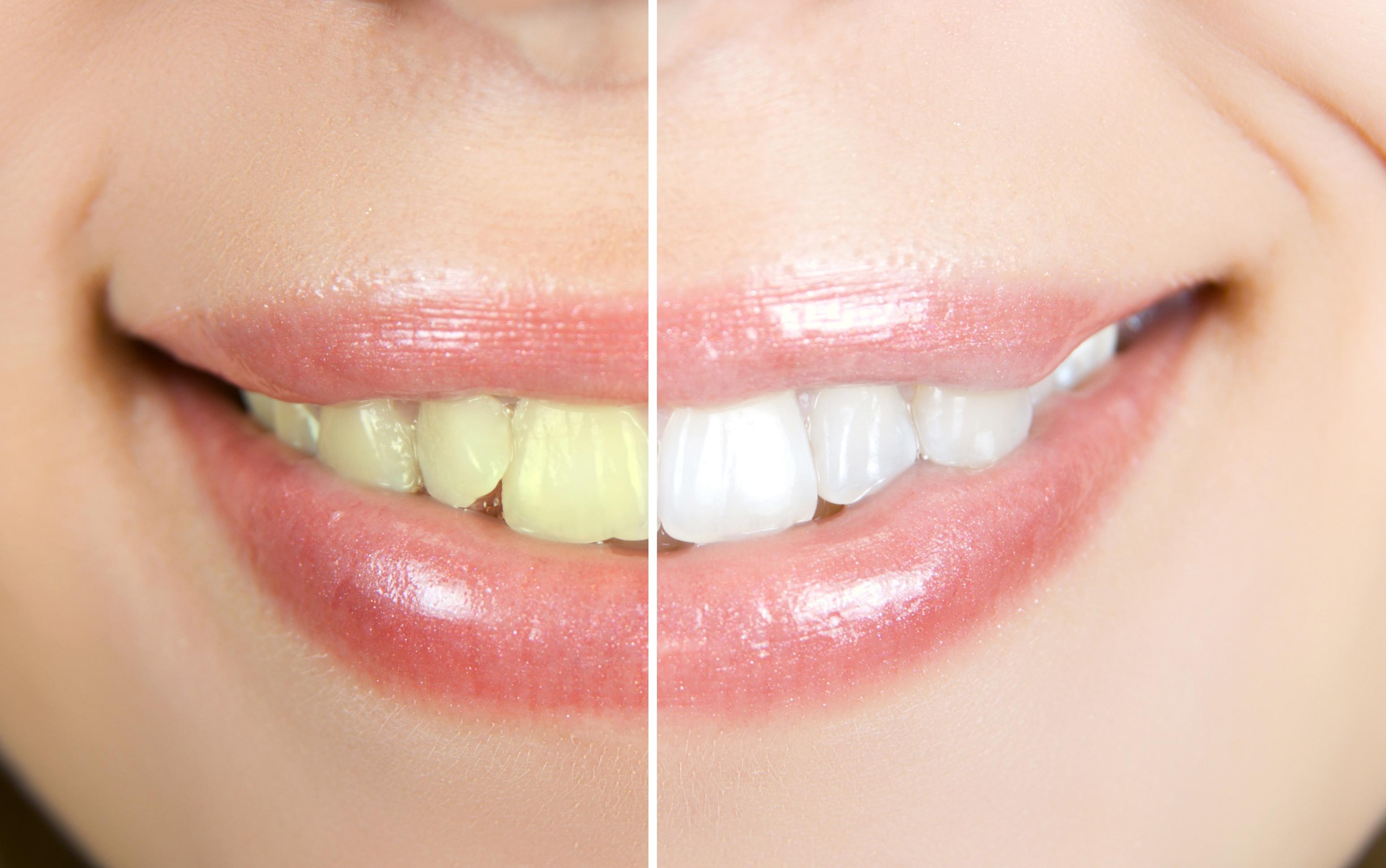 Teeth Whitening in Johns Creek