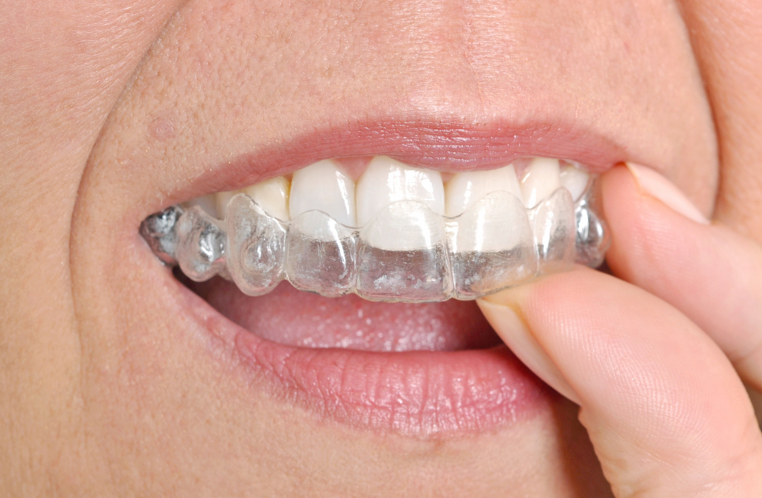 Where Can I Get 30022 Clear Braces?