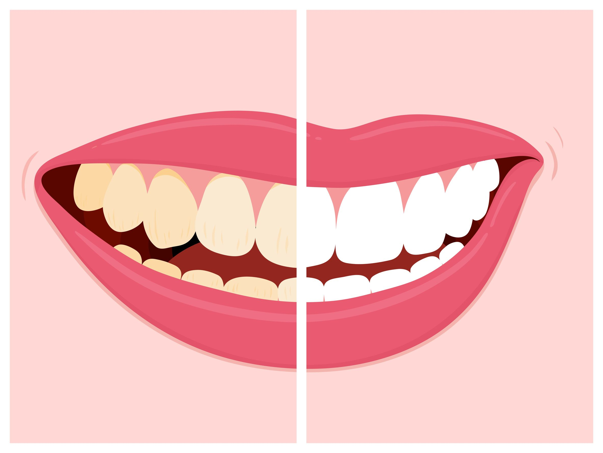 Which Johns Creek Cosmetic Dentist Can Give Me A Makeover?