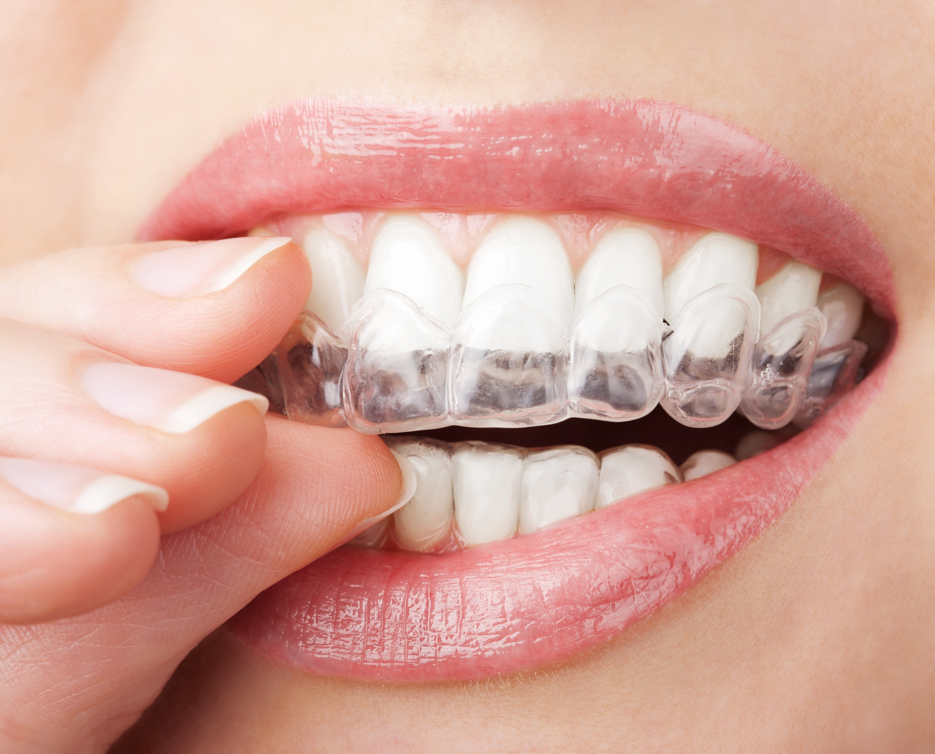 Where can I get Invisalign in Johns Creek?