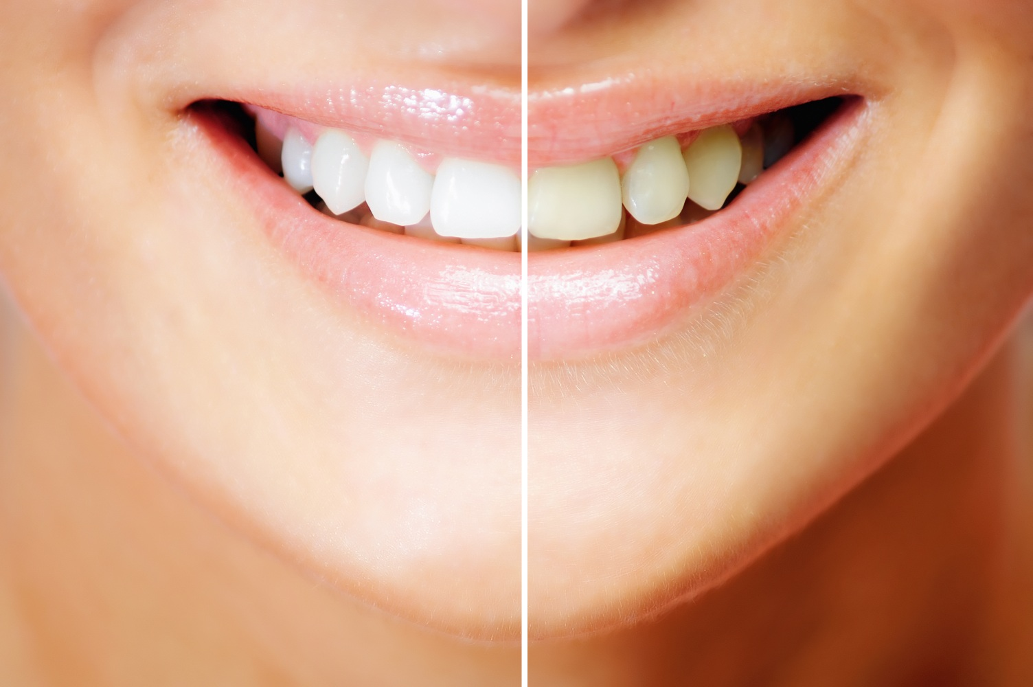 Convenient Teeth Whitening Options for Charlotte and Beyond