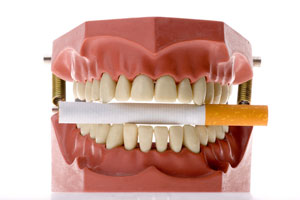 Learn the Signs of Oral Cancer with Help from Dr. Schramm