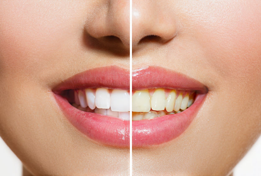Where can I get North Brunswick Teeth Whitening?