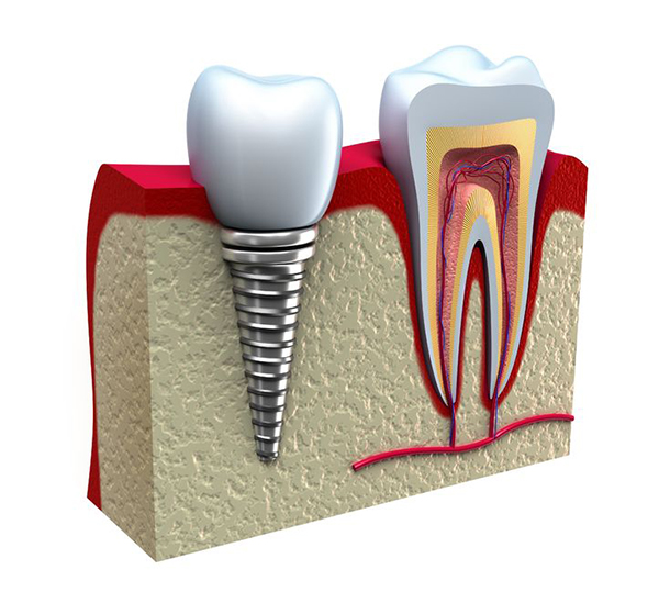Albany root canal therapy