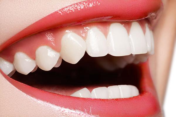 Cosmetic dentist in 95119