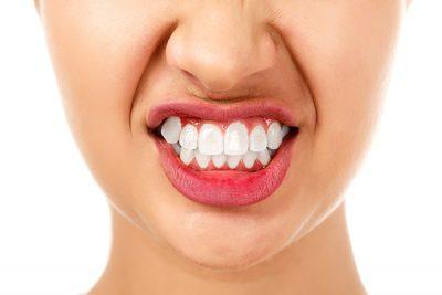 San Jose Teeth Whitening