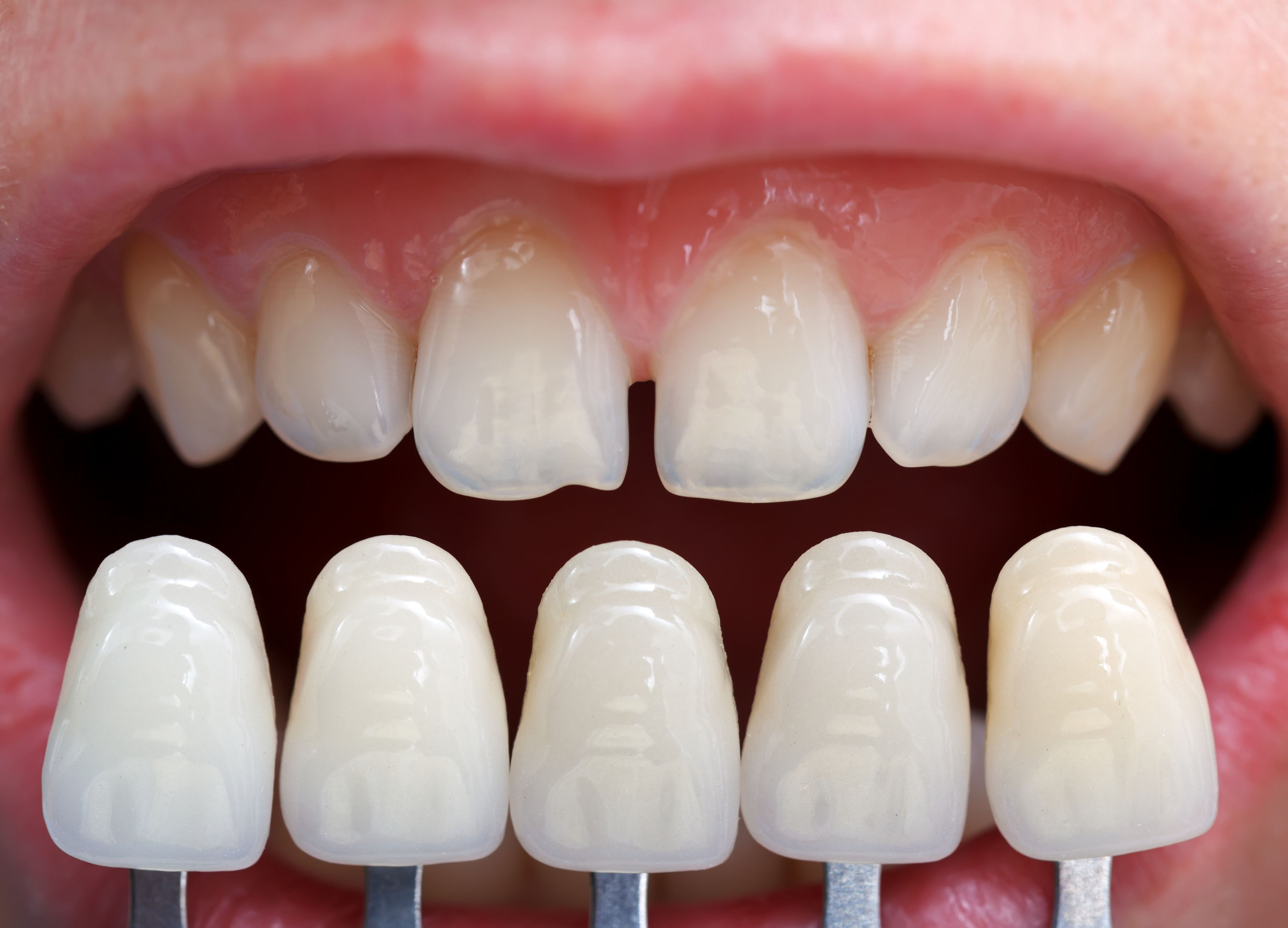 Cosmetic Dentist in Beaumont