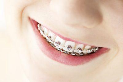 Cincinnati Orthodontics