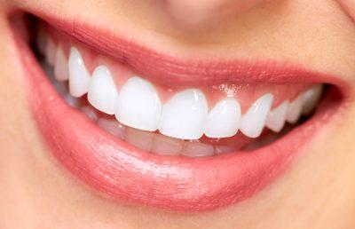 Anderson Teeth Whitening