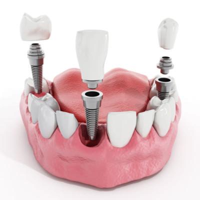 Bergen County Implants