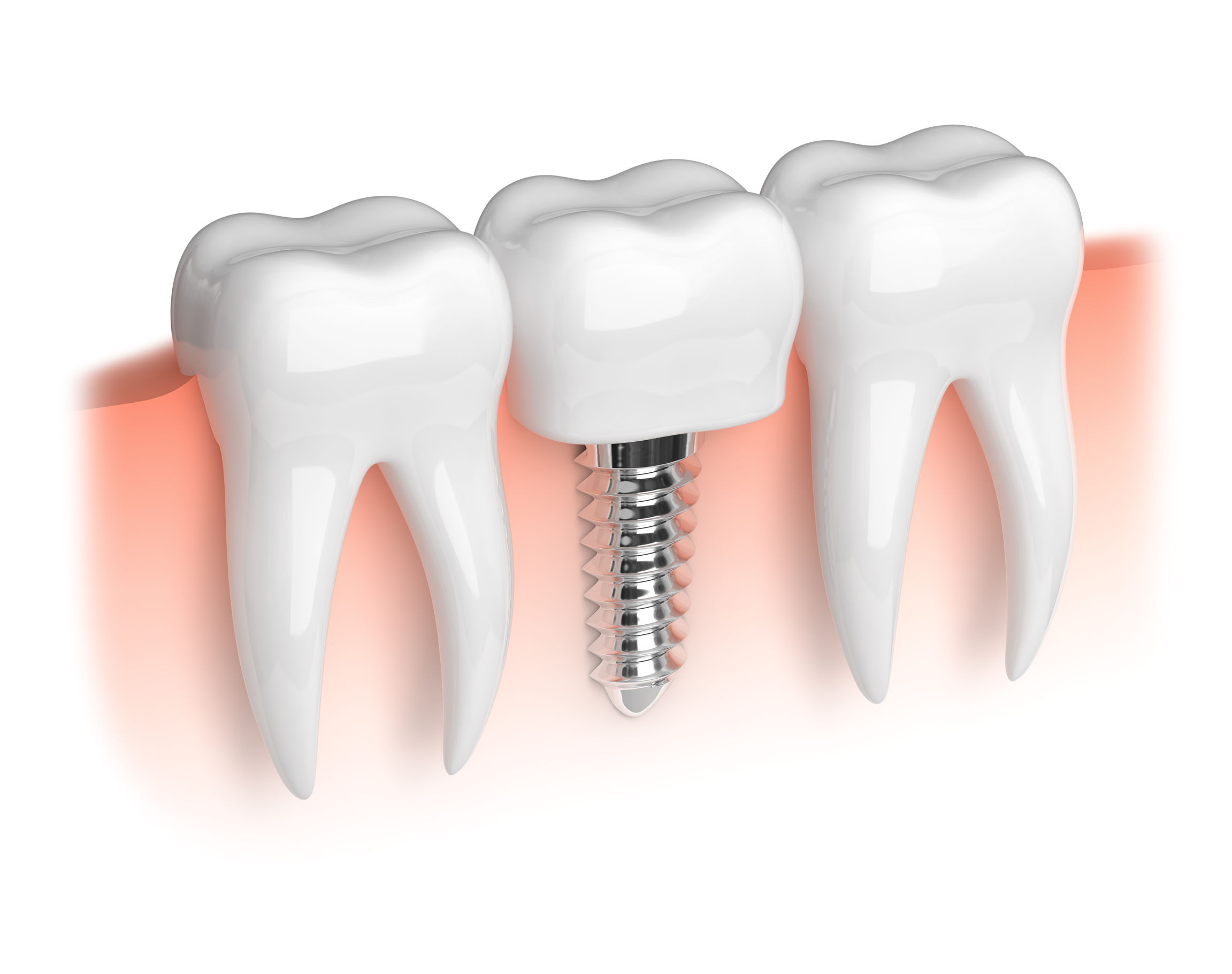 Implant dentist 27282