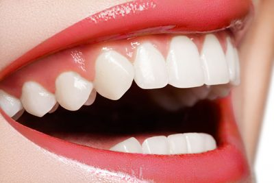 Chula Vista Teeth Whitening